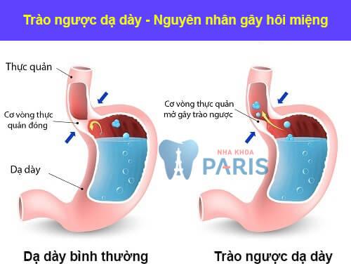 Nguyên nhân gây hôi miệng từ các bệnh lý trong cơ thể