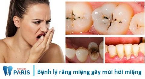 Nguyên nhân gây hôi miệng do bệnh lý răng miệng
