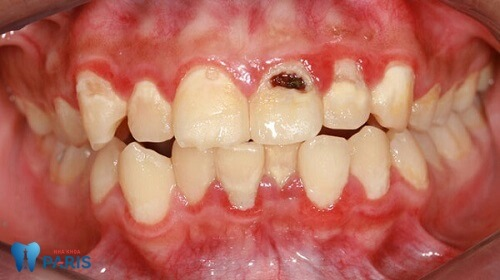 Bị sâu răng cửa, làm sao điều trị triệt để nhất? - Bác sĩ tư vấn 1