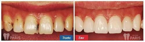 Bị sâu răng cửa, làm sao điều trị triệt để nhất? - Bác sĩ tư vấn 2