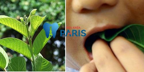 5 Cách chữa sâu răng bằng lá ổi Nhanh hiệu quả VĨNH VIỄN tại nhà 1