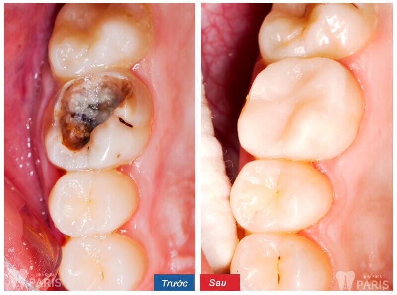 5 Cách chữa sâu răng bằng lá ổi tại nhà SIÊU HIỆU QUẢ 5