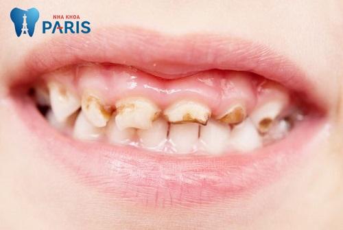 [ Tiêu điểm] - Chữa sâu răng như thế nào để đạt hiệu quả tốt nhất? 1