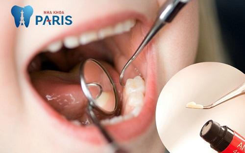 [ Tiêu điểm] - Chữa sâu răng như thế nào để đạt hiệu quả tốt nhất? 2
