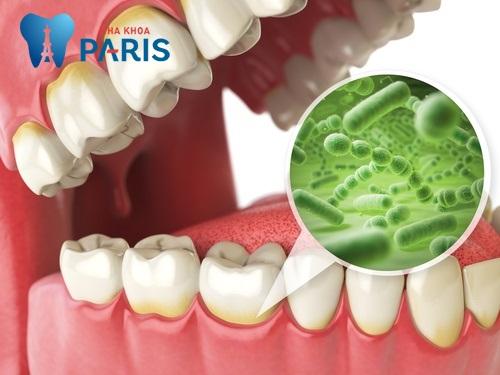 Răng sâu có mùi hôi phải làm sao để HẾT HÔI MIỆNG ?