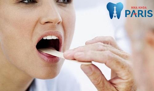 Cắt amidan có hết hôi miệng không【Bác sĩ răng miệng giải đáp】3