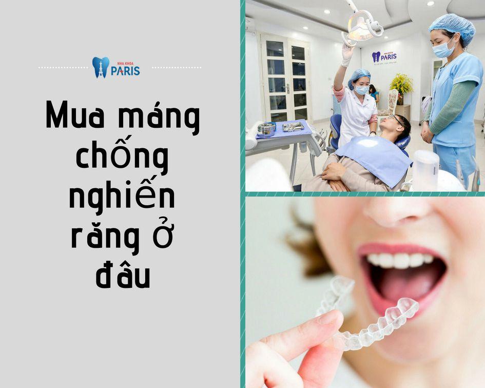 Máng chống nghiến răng hoạt động ra sao? Giá bao nhiêu RẺ NHẤT 2