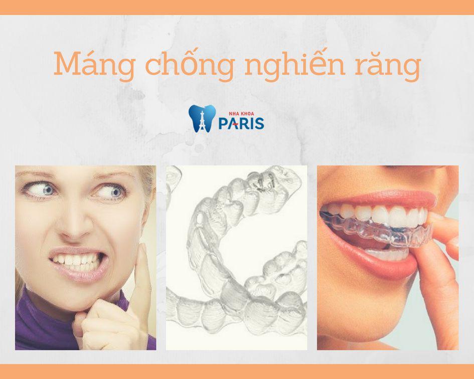 Máng chống nghiến răng hoạt động ra sao? Giá bao nhiêu RẺ NHẤT 1