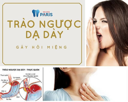 Vì sao Trào ngược dạ dày gây hôi miệng ?