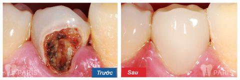 Giật mình hình ảnh sâu răng TRƯỚC và SAU khi điều trị 2