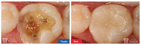 Giật mình hình ảnh sâu răng TRƯỚC và SAU khi điều trị 3