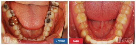 Giật mình hình ảnh sâu răng TRƯỚC và SAU khi điều trị 4