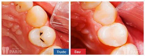 Giật mình hình ảnh sâu răng TRƯỚC và SAU khi điều trị 5
