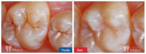Giật mình hình ảnh sâu răng TRƯỚC và SAU khi điều trị 7