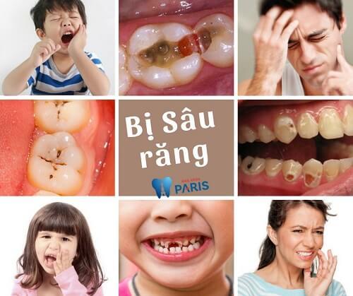 Giật mình hình ảnh sâu răng TRƯỚC và SAU khi điều trị 1