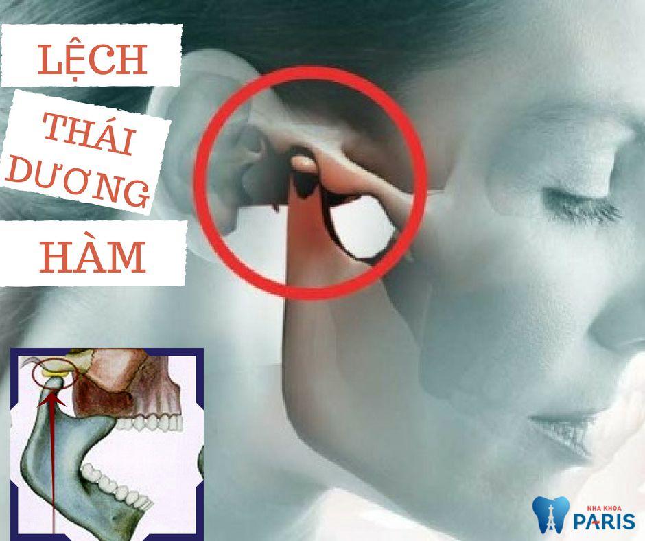 Nghiến răng đau tai là bệnh gì? Có những cách nào để điều trị? 2