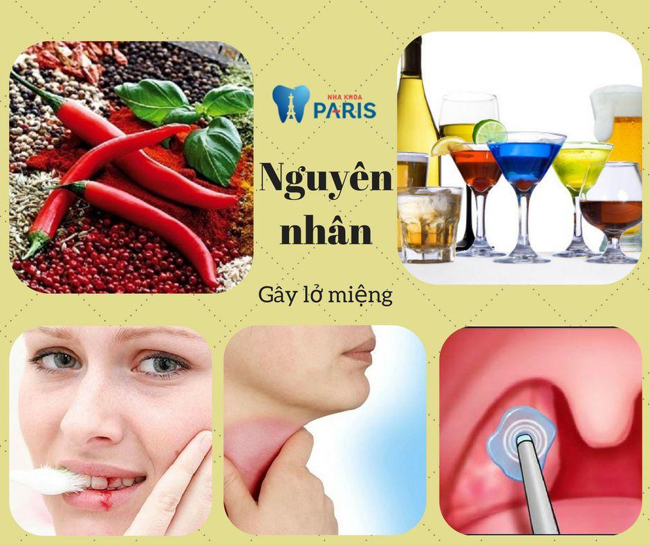 Lở miệng nổi hạch: Nguyên nhân và cách điều trị HIỆU QUẢ NHẤT 2