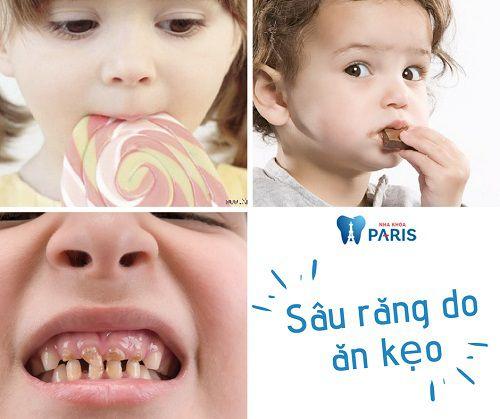 Nguyên nhân ăn kẹo sâu răng ở trẻ và cách điều trị HIỆU QUẢ 1