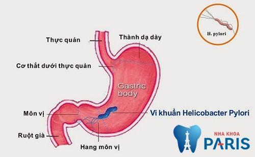 Hôi miệng ký sinh trùng - Helicobacter pylori