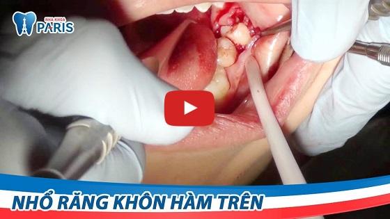 Nhổ răng khôn hàm trên bằng công nghệ Piezotome