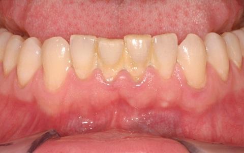 Lấy cao răng giúp loại bỏ các mảng bám gây mùi.