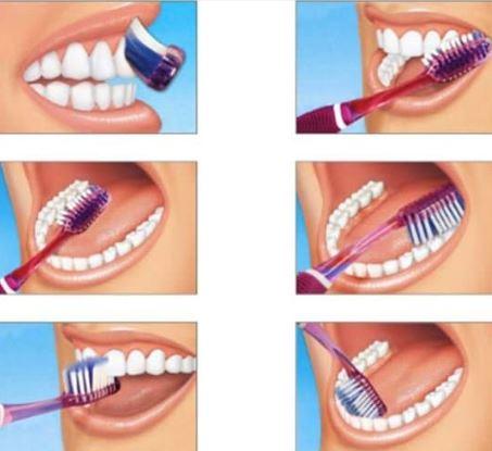 Nguyên nhân gây hôi miệng do vệ sinh răng miệng kém